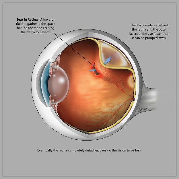 Retinal Detachment Medical Opticsmedical Optics