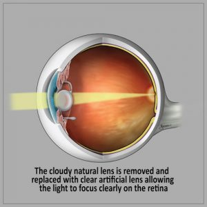 Cataract Surgery - Cataract Recovery- cloudy natural lens remove
