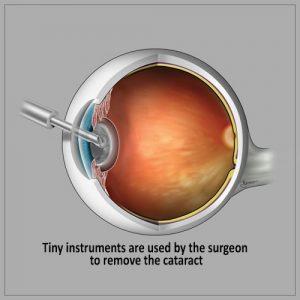 Cataract Surgery- use of tiny instrument