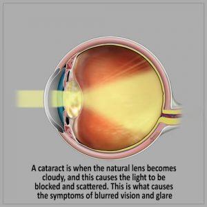 Cataract Surgery -Symptoms of Cataract- natural lens become cloudy