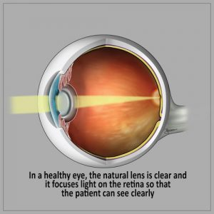 Cataract Surgery - A Healthy Eye- natural lens is clear