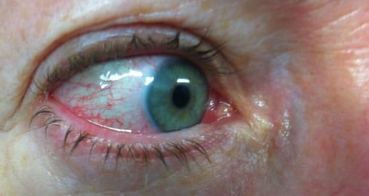 Red or pink eye with rosacea skin condition